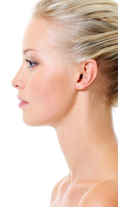 Rinoplastia estética funcional, rinoseptoplastia o nariz plurioperada
