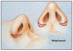 Escisión de Weir cutánea para estrechamiento de base alar y acortamiento de aletas nasales.
