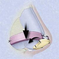 Injertos cartilaginosos de ala nasal (alar batten graft) y de punta nasal (escudo tipo Sheen)