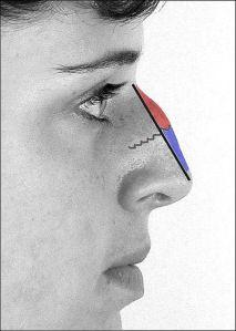 Reducción de dorso óseo (rojo) y cartilaginoso (azul)
