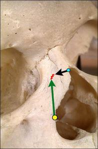 Osteotomía Baja-Baja para estrechamiento de dorso óseo en su base.