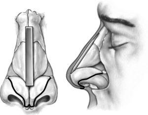 Injerto de dorso tipo onlay para resecciones excesivas de dorso (iatrogenia), dorsos hundidos por drogas…