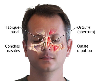 Rinoplastia-rinoseptoplastia: dificultad respiratoria nasal