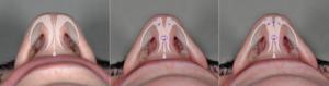 Suturas intra e interdomales en punta nasal.