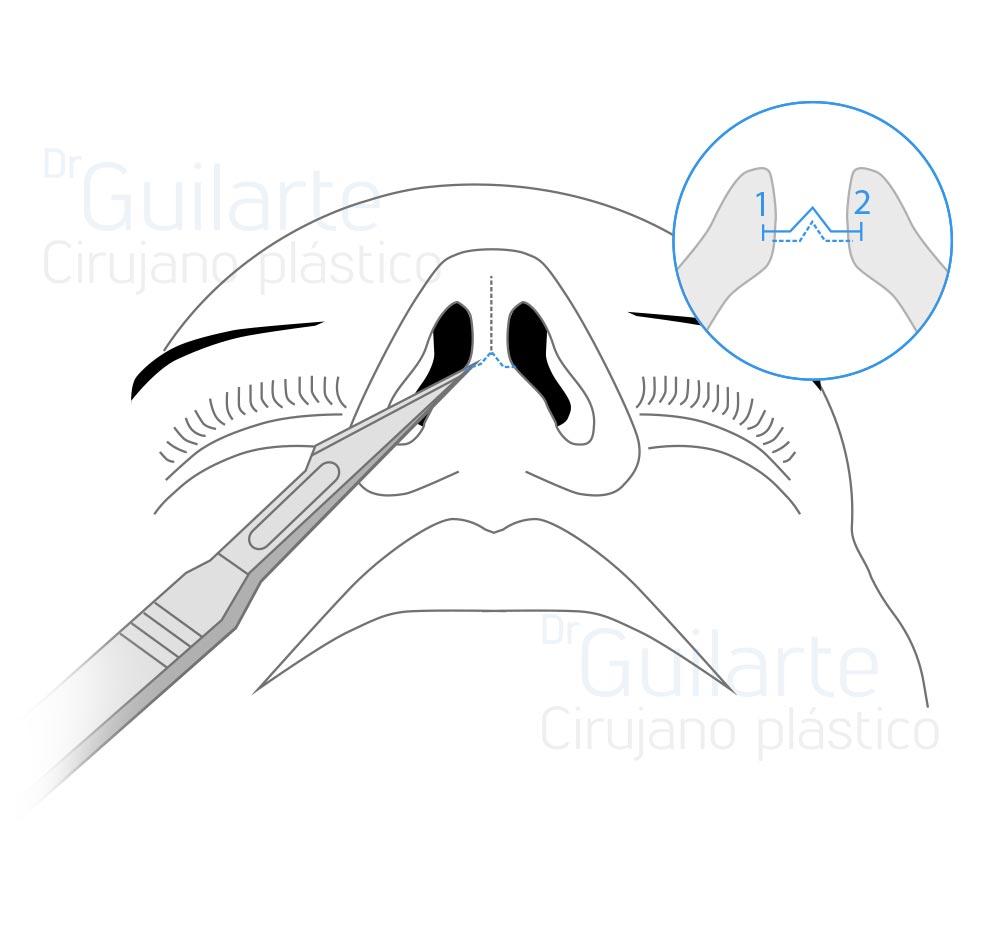 Rinoplastia abierta, tipos de rinoplastia (Dr Guilarte)