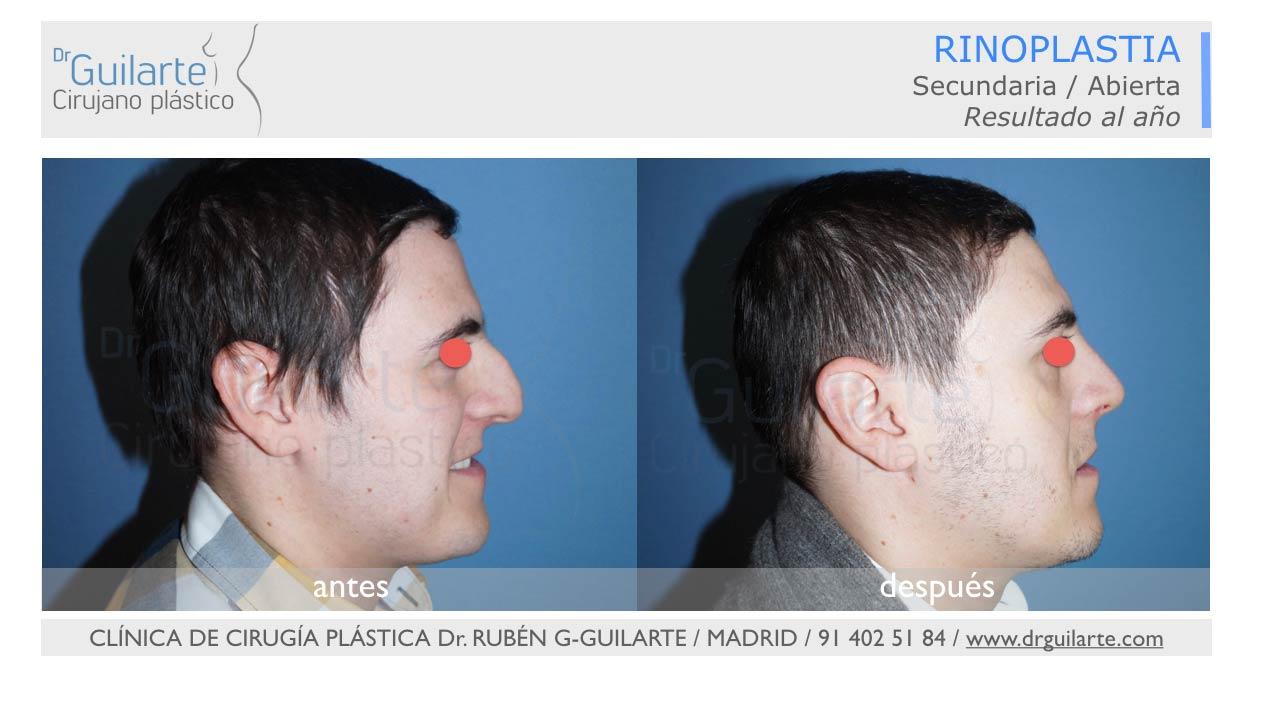 mejores-resultados-rinoplastia-cirugia-nariz