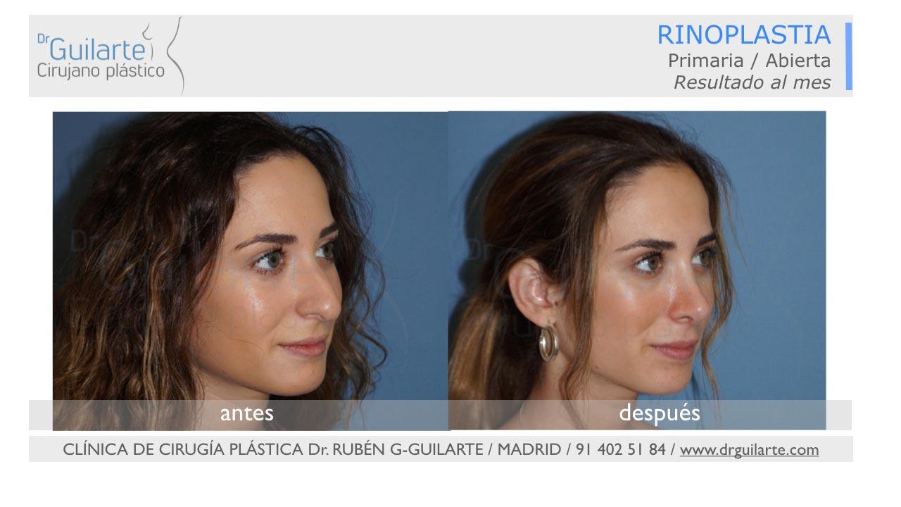 Rinoplastia ultrasónica en Madrid (Dr Guilarte) - Caso real - Foto resultado lateral