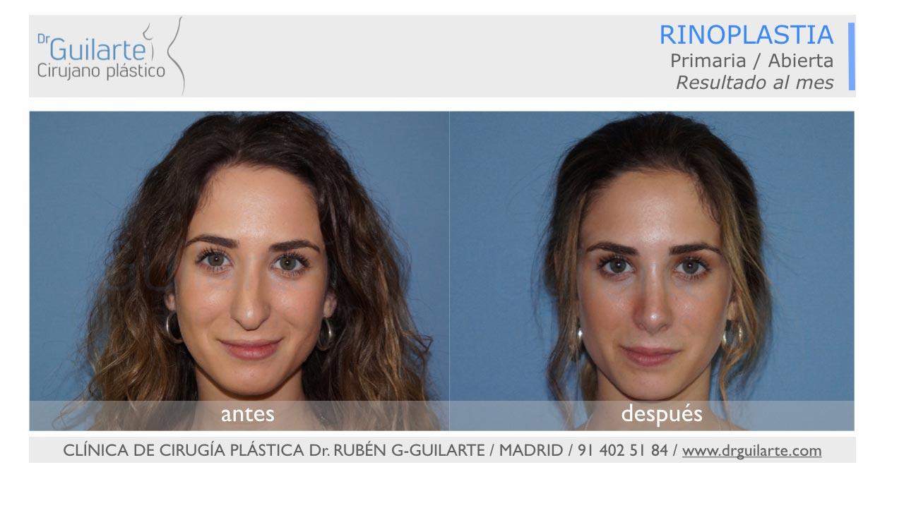 Rinoplastia ultrasónica en Madrid (Dr Guilarte) - Caso real - Foto frontal