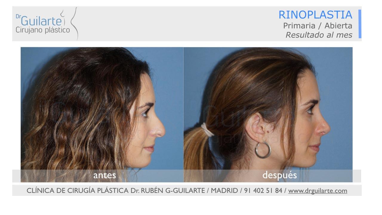 Rinoplastia ultrasónica en Madrid (Dr Guilarte) - Caso real - Foto perfil