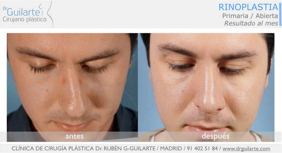 Foto antes y después, corrección de la desviación de nariz realizada por el Dr Guilarte (Madrid)