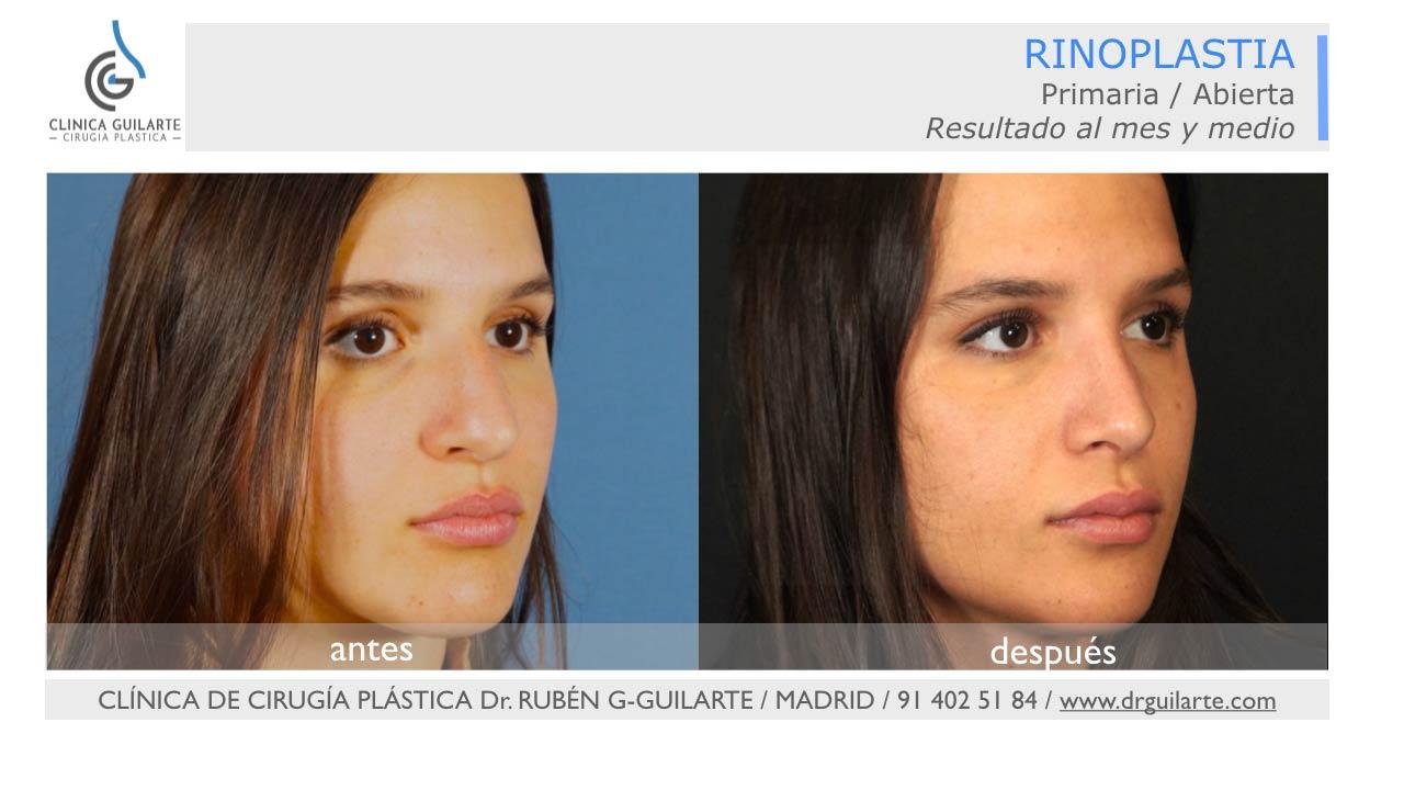 Foto rinoplastia resultado natural en Nueva Clínica Guilarte - foto 3-4