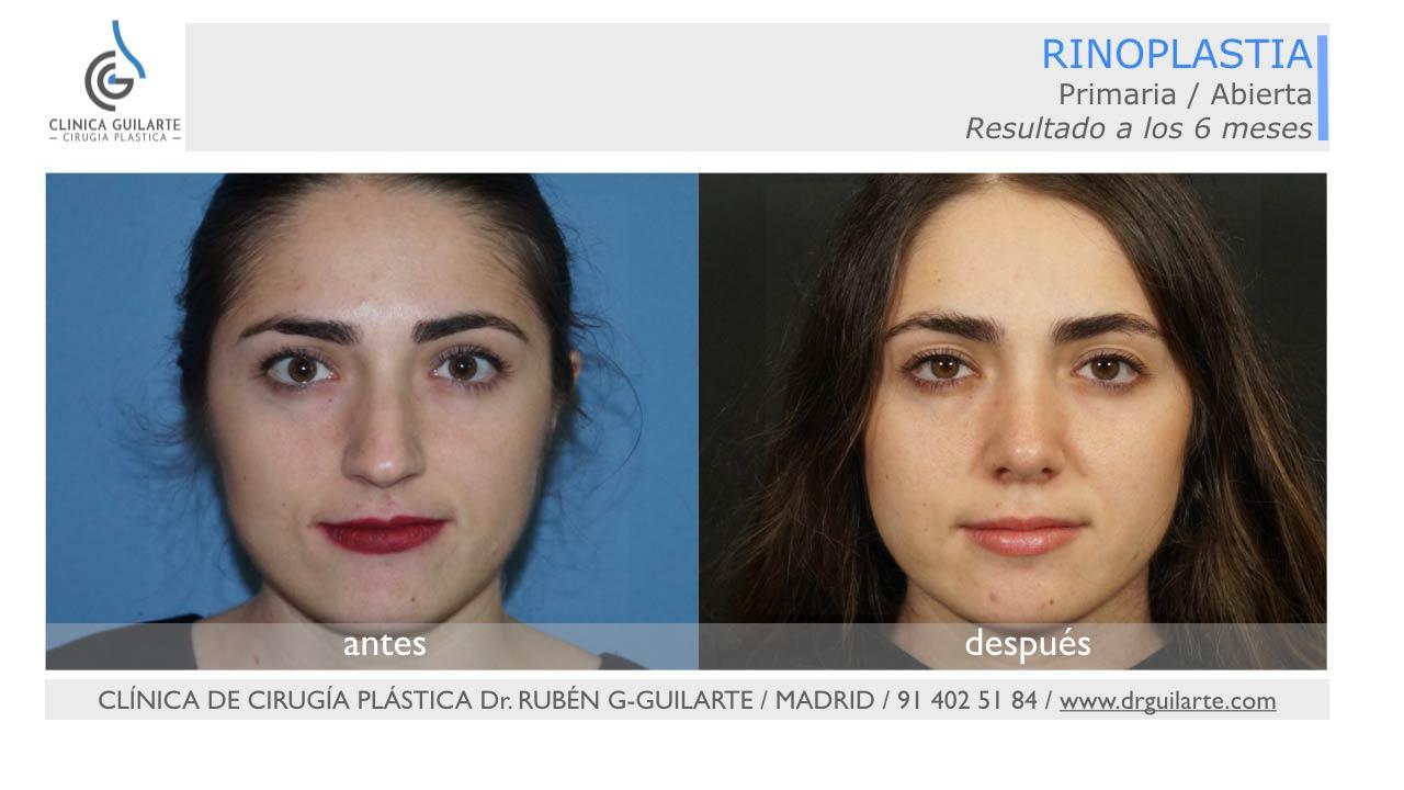 Resultado rinoplastia foto joven con el rostro dulcificado después de la intervención