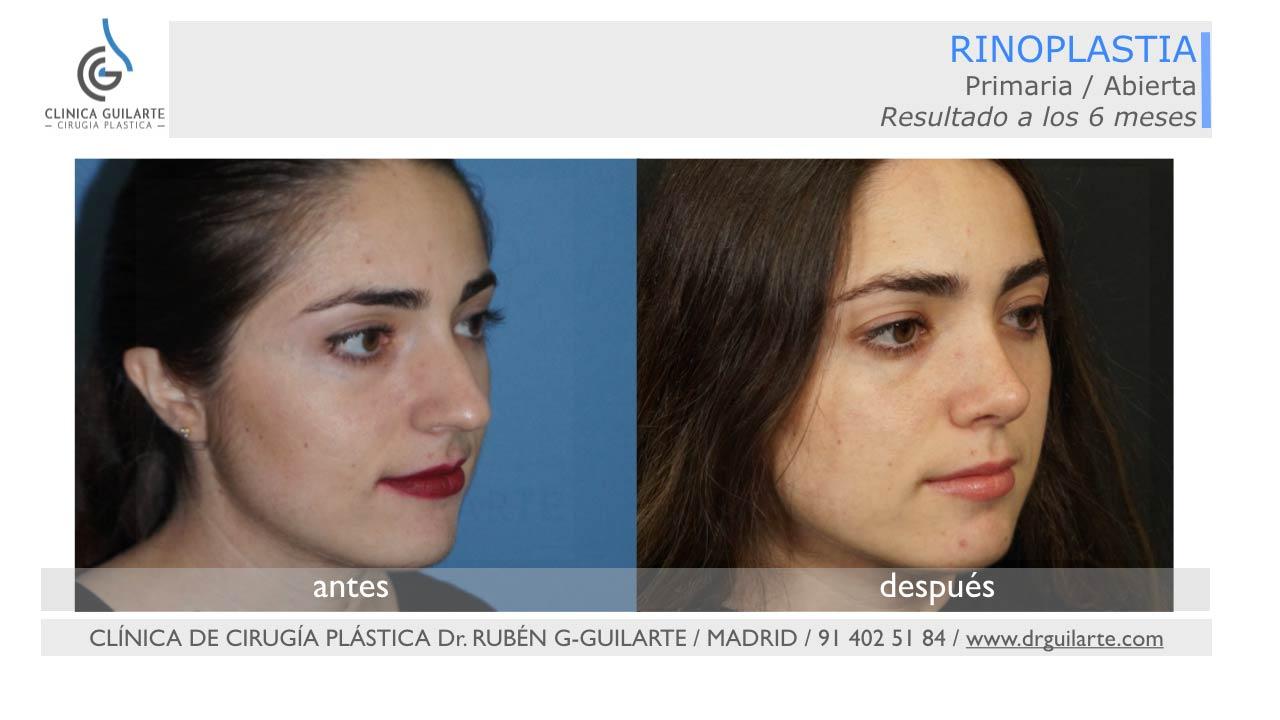 Resultado de rinoplastia de preservación en Madrid
