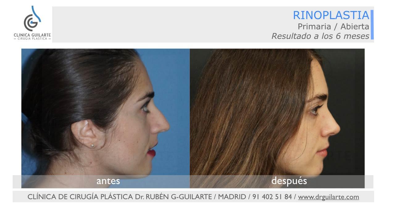 Los mejores resultados de rinoplastia, galería fotográfica de Casos Reales del Dr Guilarte