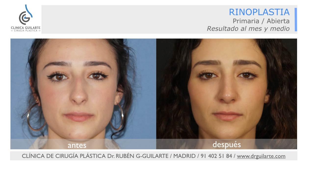 Resultado rinoplastio rn el rostro de chica joven - foto delantera