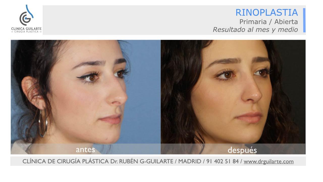 Resultado rinoplastia fotos mejore resultados cirugía de la nariz - foto 3-4