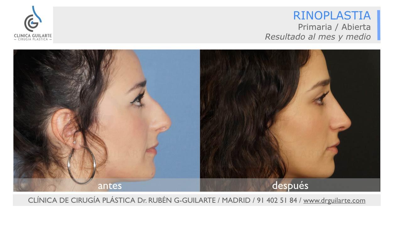 Resultado rinoplastia cirugía de la nariz en Madrid - foto perfil