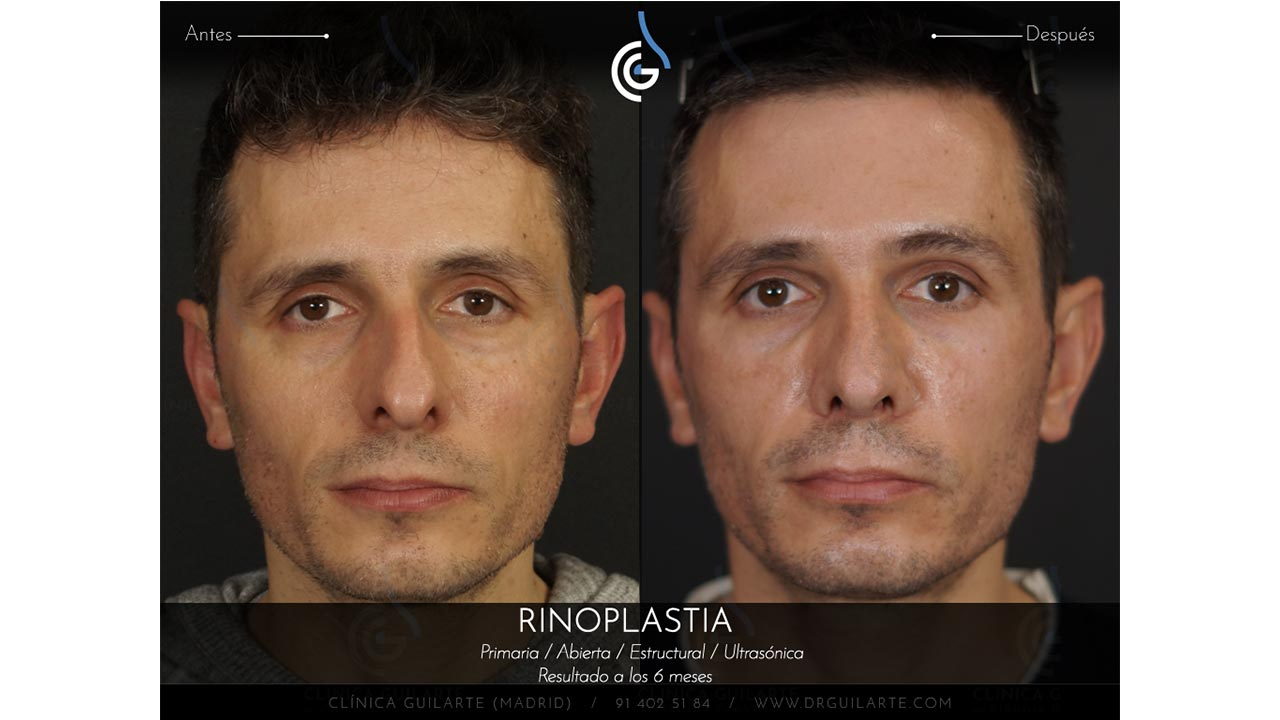cirugia-plastica-para-arreglar-una-nariz-desviada-resultado-clinica-madrid