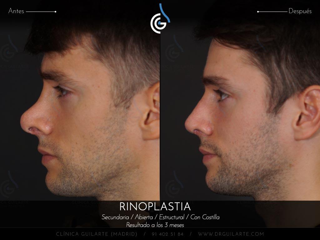 foto-1-cirugia-secundaria-en-paciente-con-el-dorso-nasal-amputado-que-se-ve-convexo-pinzamiento-exagerado-punta-nariz-hiperproyectada-desviada-y-con-retraccion-alar