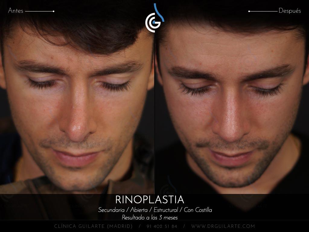 foto-2-cirugia-secundaria-en-paciente-con-el-dorso-nasal-amputado-que-se-ve-convexo-pinzamiento-exagerado-punta-nariz-hiperproyectada-desviada-y-con-retraccion-alar-01