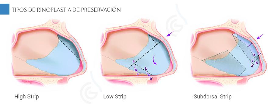 Rinoplastia de preservacion, tipos high strip, low strip y subdorsal strip