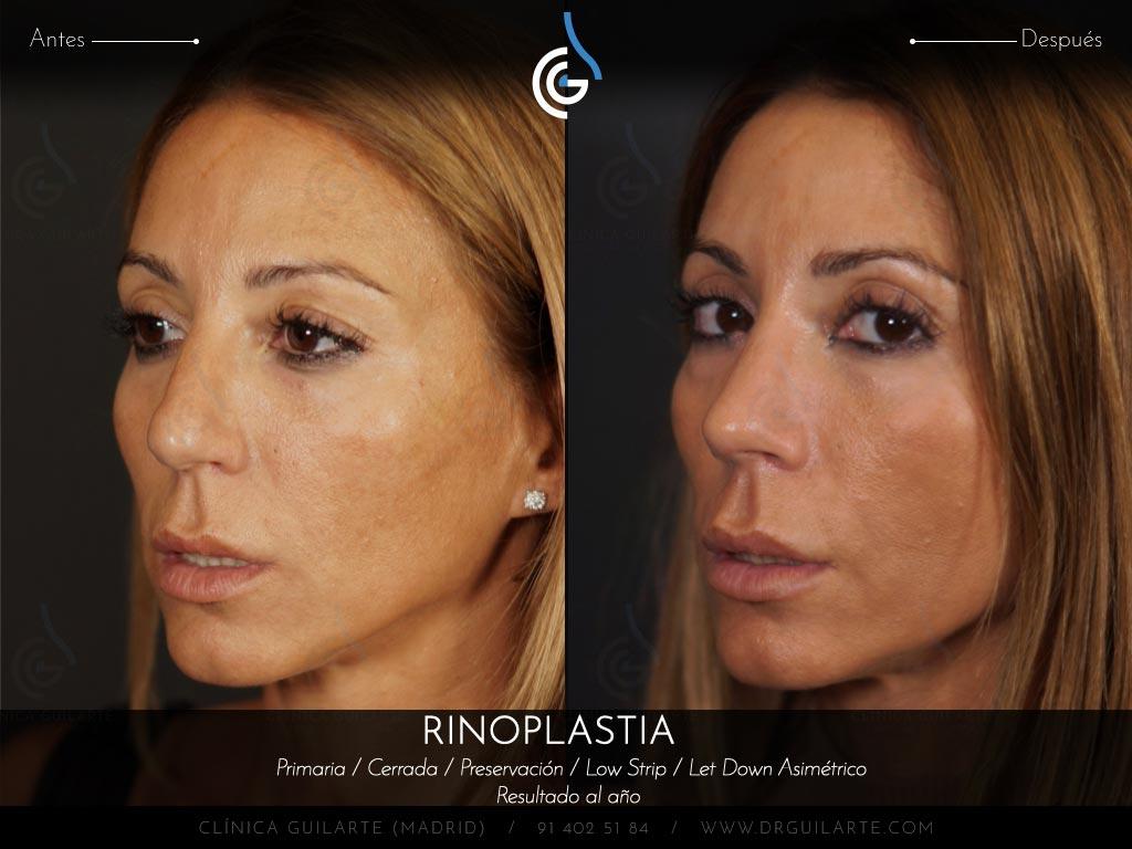 Rinoseptoplastia para operar un tabique y una piramide nasal tremendamente desviada.jpg